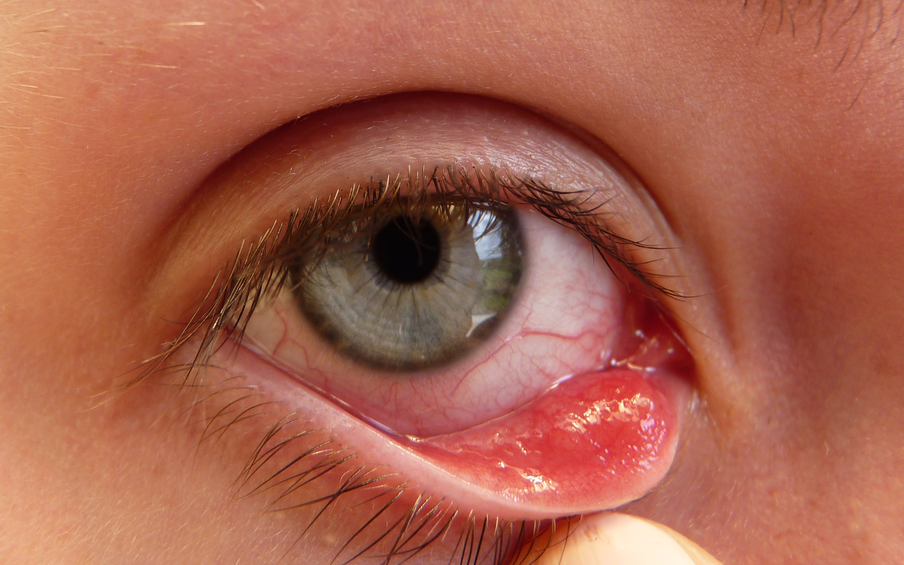It's Urine, Not Chlorine That Makes Your Kids' Eyes Red