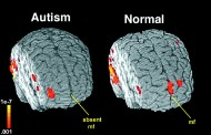 Worries Grow With Increasing Autism Diagnoses