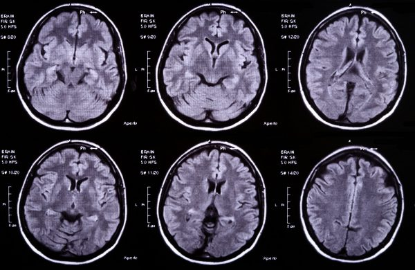 Marijuana Helped a Brain Damaged 72 Year Old But They Prosecuted Her Anyway