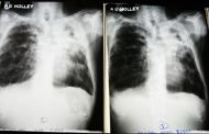 State Admits TB Cases Came From Immigrants, Refugees